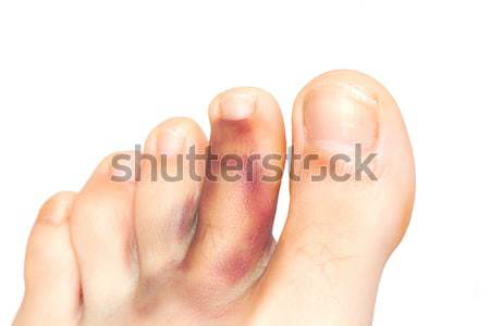 Broken toe Stock photo © igabriela