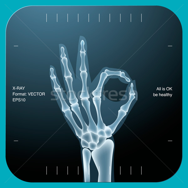 X-ray of both human hand - OK symbol Stock photo © ikopylov