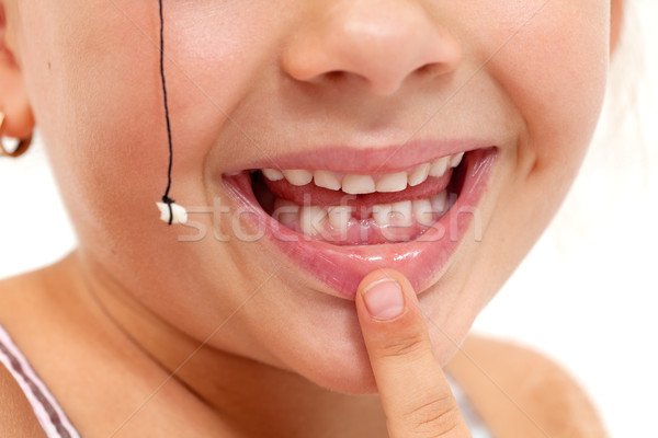 Child pointing to missing teeth - closeup on mouth Stock photo © ilona75
