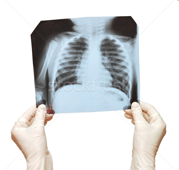 Doctor examining the X-ray over white Stock photo © inxti