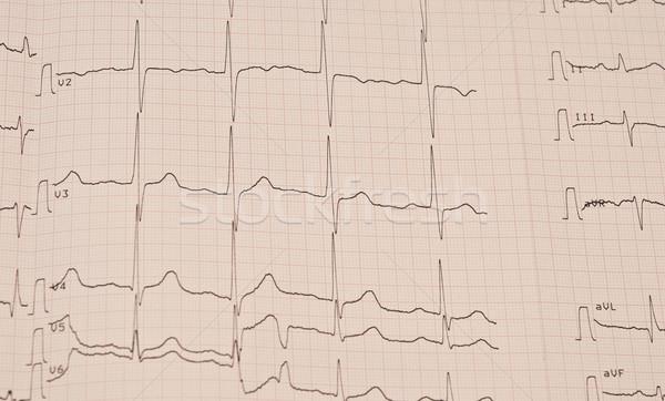 cardiogram Stock photo © inxti