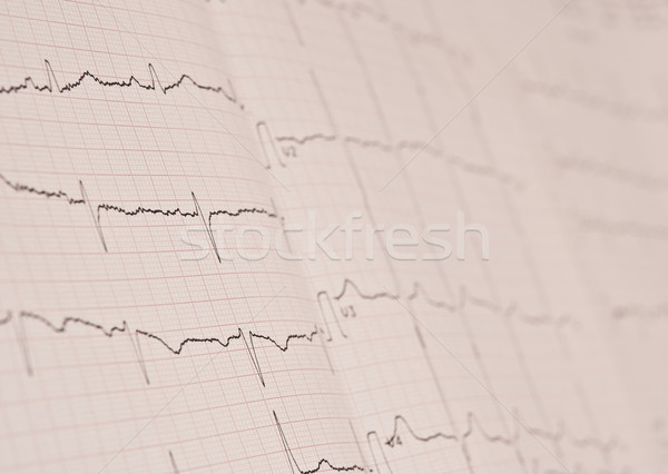 Detail of an electrocardiogram in paper  Stock photo © inxti