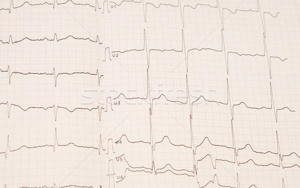 Corazón ritmo tabla médicos tecnología fondo Foto stock © inxti