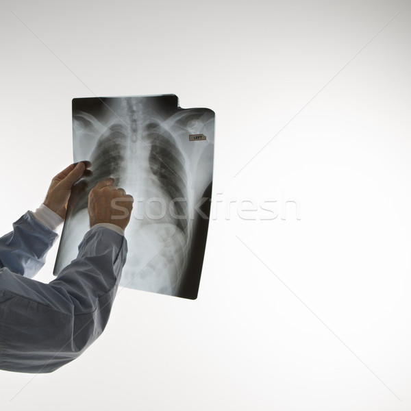 Médecin lecture x ray médecin de sexe masculin pointant Photo stock © iofoto