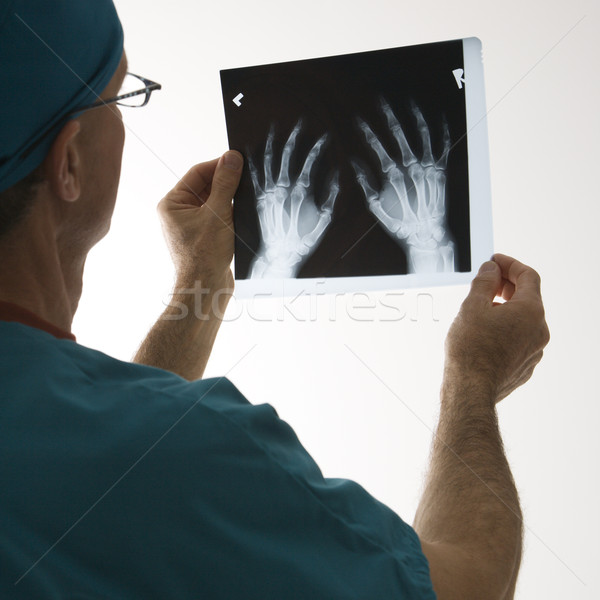 Doctor holding an x-ray. Stock photo © iofoto