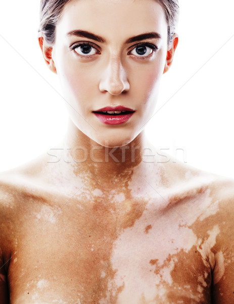 young pretty brunette real modern woman with vitiligo desease close up Stock photo © iordani