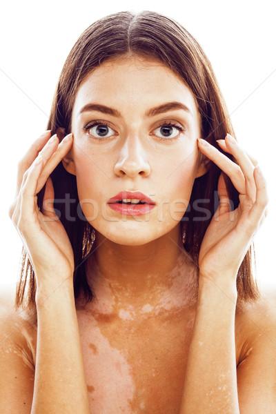 Belo jovem morena mulher doença Foto stock © iordani