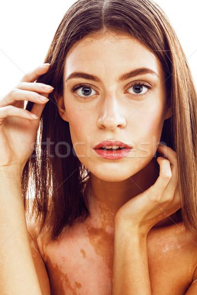 beautiful young brunette woman with vitiligo disease close up isolated on white positive smiling, mo Stock photo © iordani