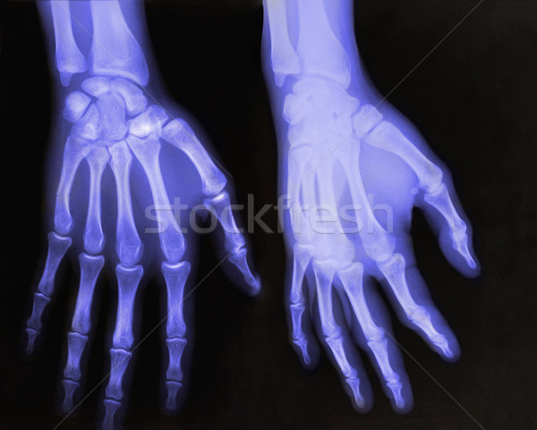 X-rays of hands Stock photo © IvicaNS