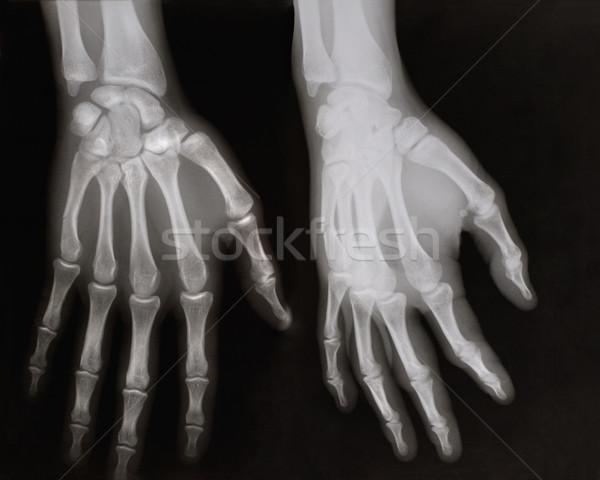 Mãos mão adulto homem visível dano Foto stock © IvicaNS