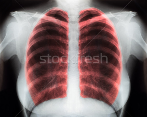 x-ray Stock photo © IvicaNS