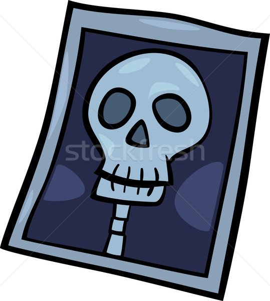 x-ray photo clip art cartoon illustration Stock photo © izakowski