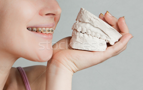 Smile with bracket & plaster jaw model Stock photo © jagston