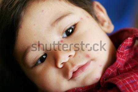 Baby boy with chicken pox Stock photo © jarenwicklund