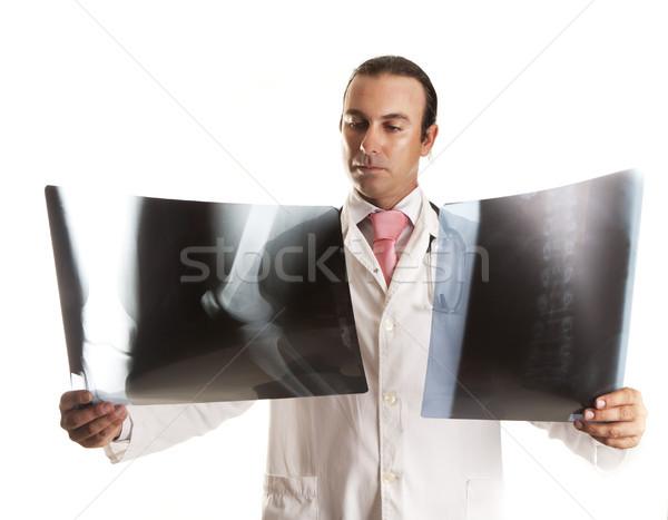 Kettő röntgenkép orvos néz ad diagnózis Stock fotó © jarp17
