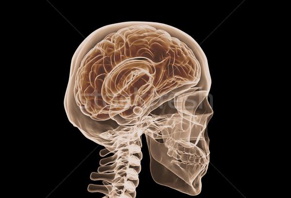 Cerebro Xray aislado negro cráneo radiografía Foto stock © jezper