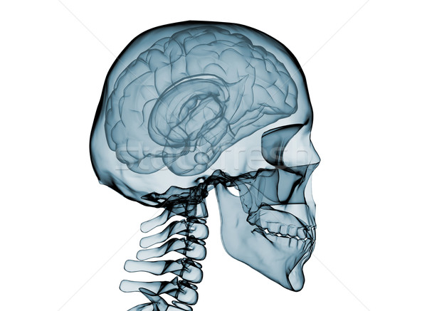 Brain x ray Stock photo © jezper