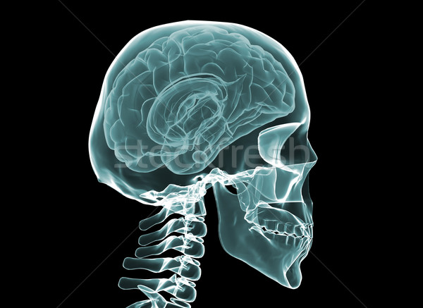 Stock photo: X-ray brain and skeleton