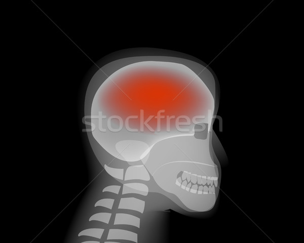 Headache,stroke, Brain Diseases,Alzheimer Stock photo © jiaking1