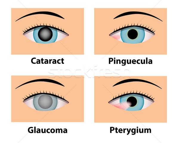 Cataract, Pinguecula, Glaucoma and Pterygium, eye care Stock photo © jiaking1