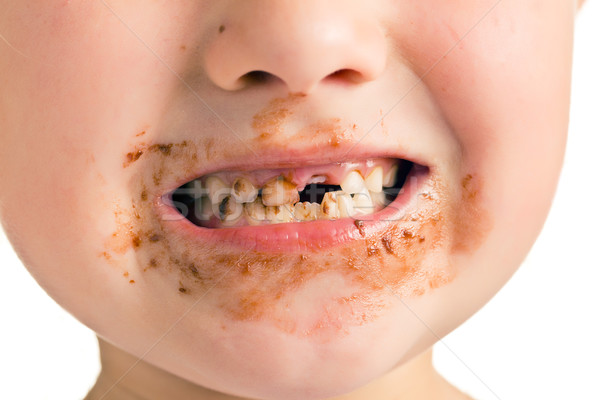 ребенка грязные рот отсутствующий зубов улыбка Сток-фото © jirkaejc