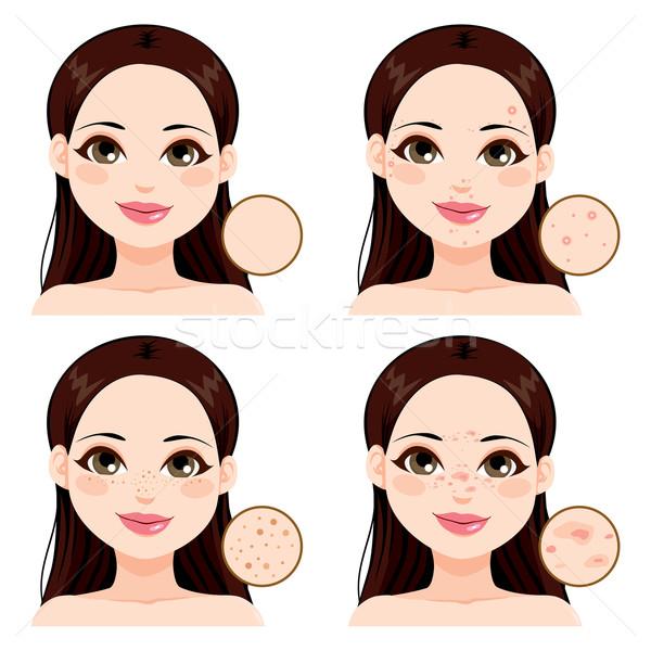 Nő bőr problémák fiatal nő mutat effektek Stock fotó © Kakigori