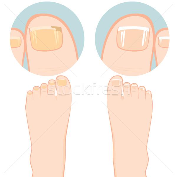 Paznokci zakażenie dwa stóp jeden Zdjęcia stock © Kakigori