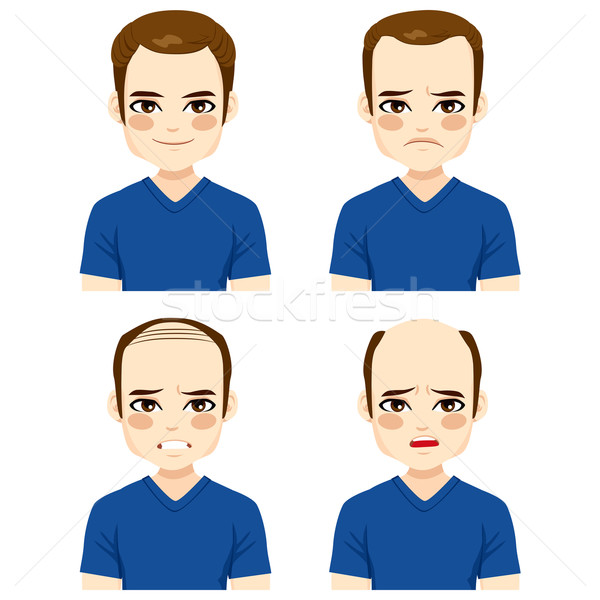Male Hair Loss Stages Stock photo © Kakigori