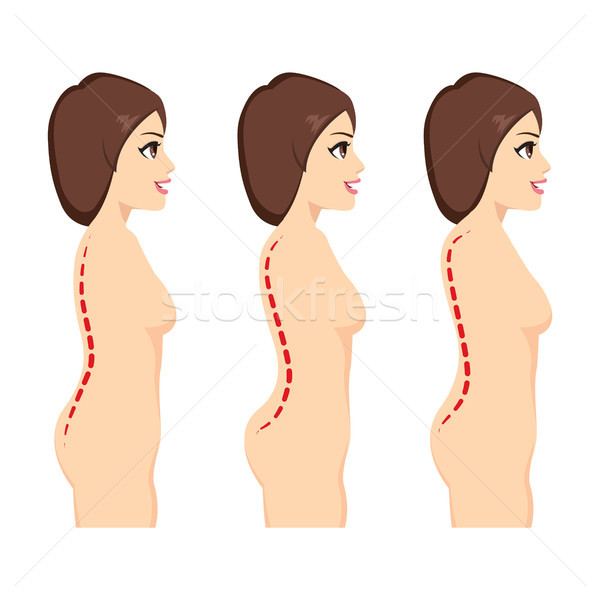 Scoliosis Medical Condition Stock photo © Kakigori