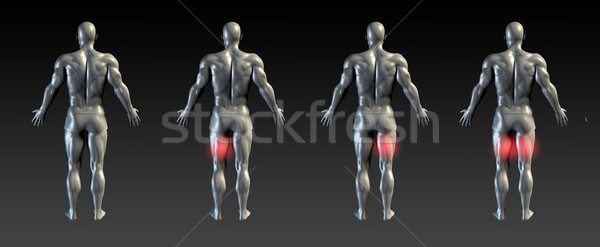 Letsel Rood gloed medische sport ziekenhuis Stockfoto © kentoh