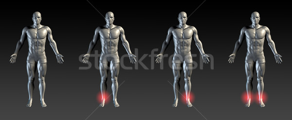 Boka sérülés piros izzik orvosi sportok Stock fotó © kentoh
