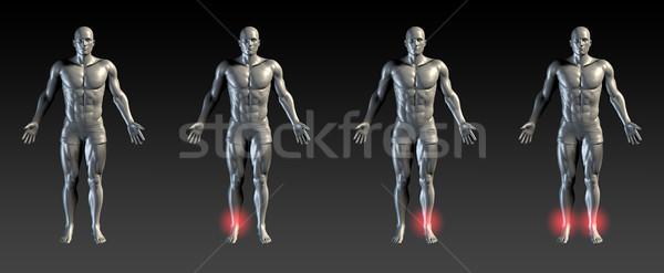 Stockfoto: Enkel · letsel · Rood · gloed · medische · sport
