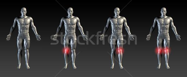 Diz hasar kırmızı parıltı tıbbi spor Stok fotoğraf © kentoh