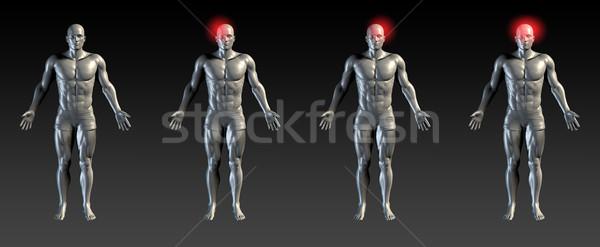 Fej sérülés piros izzik orvosi sportok Stock fotó © kentoh