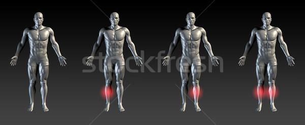 Scheenbeen Rood gloed medische sport ziekenhuis Stockfoto © kentoh