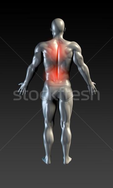 Colonna vertebrale lesioni rosso bagliore salute sport Foto d'archivio © kentoh