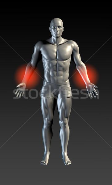 Forearm Injury Stock photo © kentoh