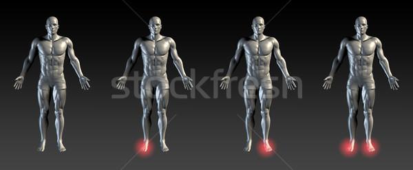 Láb sérülés piros izzik orvosi sportok Stock fotó © kentoh