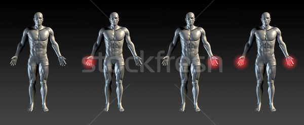 Kéz sérülés piros izzik orvosi sportok Stock fotó © kentoh