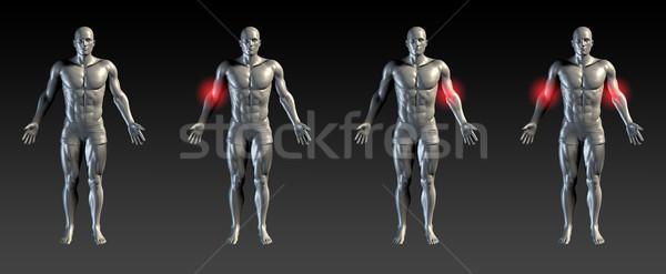 Könyök sérülés piros izzik orvosi sportok Stock fotó © kentoh