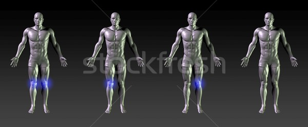 Térd gyógyulás rehabilitáció kék izzik sportok Stock fotó © kentoh