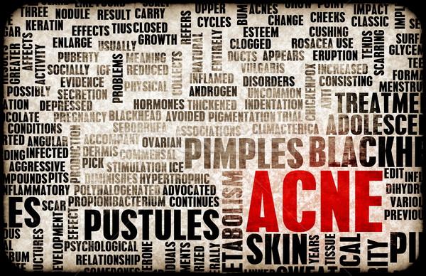 Acne problema tratamento abstrato pele conceito Foto stock © kentoh
