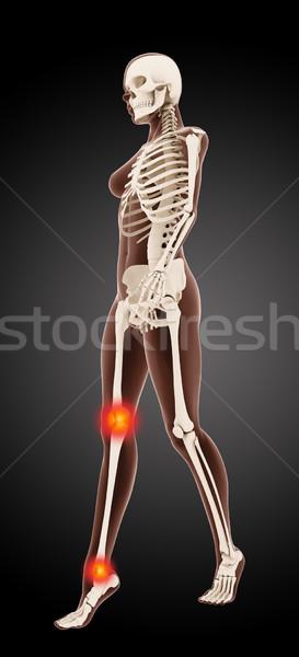 Stock fotó: Női · orvosi · csontváz · 3d · render · sétál · térd