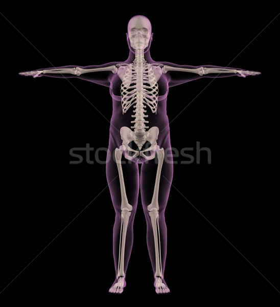 Medical skeleton of an overweight female Stock photo © kjpargeter