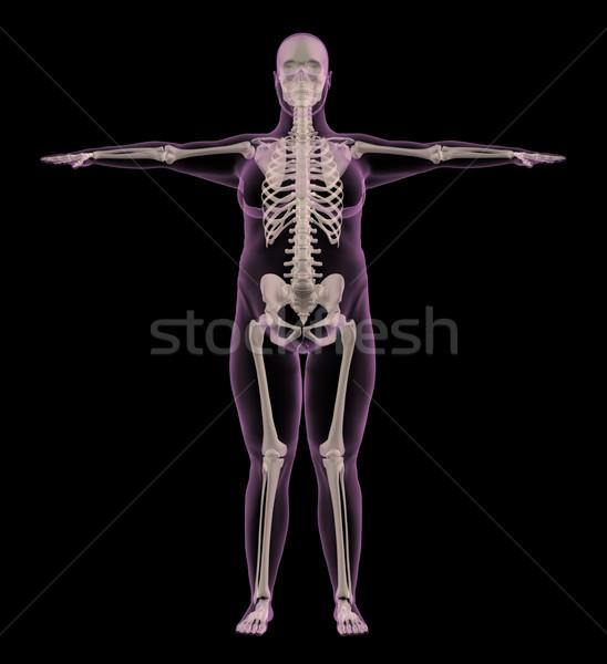 медицинской скелет избыточный вес женщины 3d визуализации интерьер Сток-фото © kjpargeter
