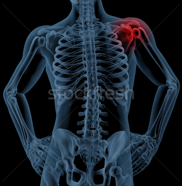 Shoulder pain Stock photo © kjpargeter