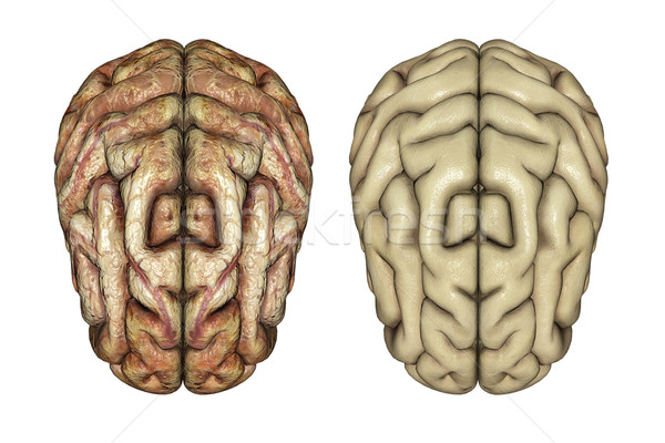 3D healthy and diseased brains Stock photo © kjpargeter