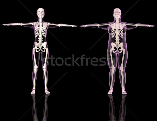 Medical female skeletons one slim and one overweight Stock photo © kjpargeter
