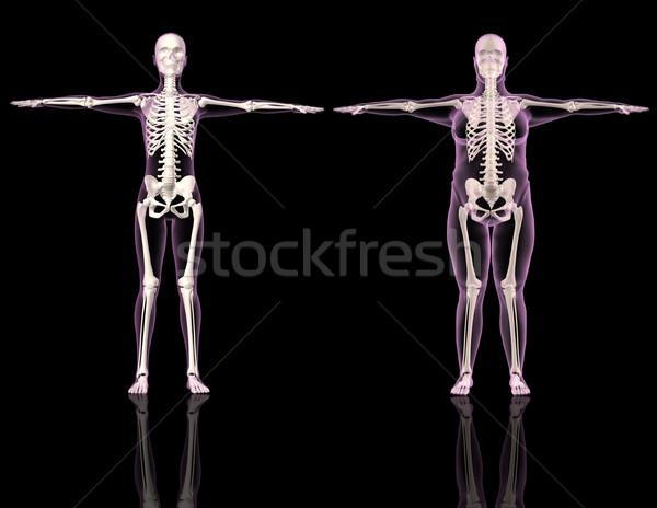 Foto d'archivio: Medici · femminile · uno · sottile · sovrappeso · 3D