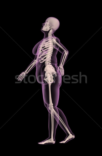 Overweight female medical skeleton with back pain Stock photo © kjpargeter